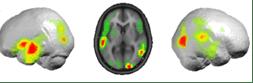 human brain@0 copy 2