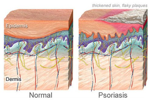 Psoriasis Cured with Tuberculinum and Staphysagria