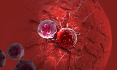 Alternative methods of dealing with cancer and tumours